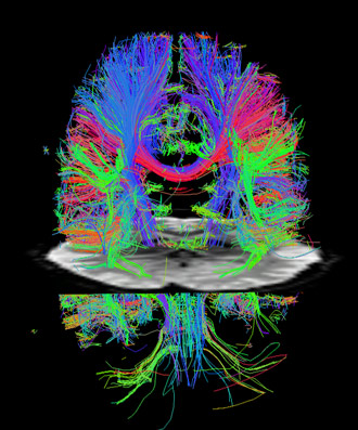 fMRI cross sectional image bisecting a diffusion image.  Credit: Washington University